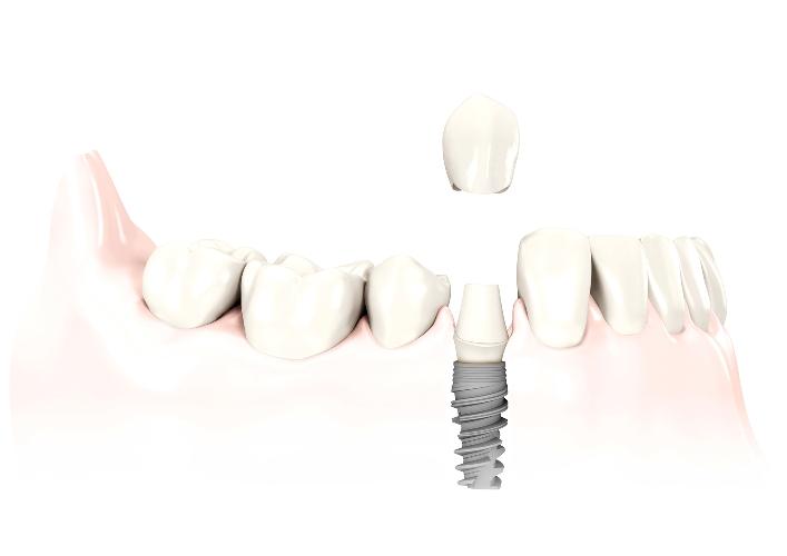come si effettua implantologia dentale | Dentista bergamo