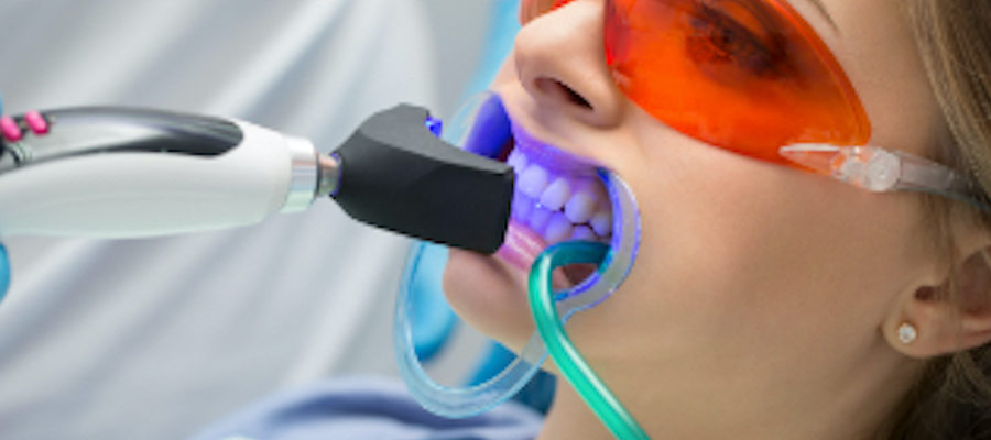 sbiancamento dentale studio dalessandri | dentista bergamo